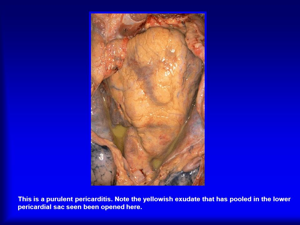 This is a purulent pericarditis