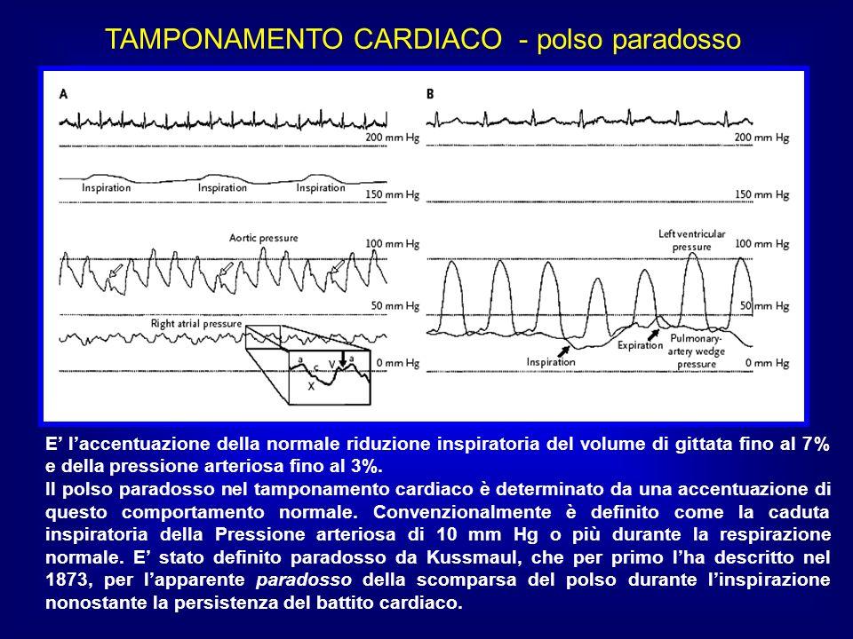 TAMPONAMENTO CARDIACO - polso paradosso