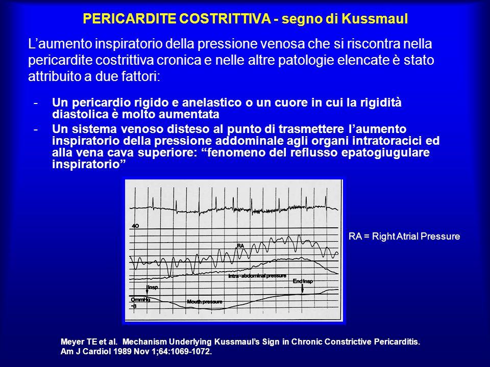 PERICARDITE COSTRITTIVA - segno di Kussmaul