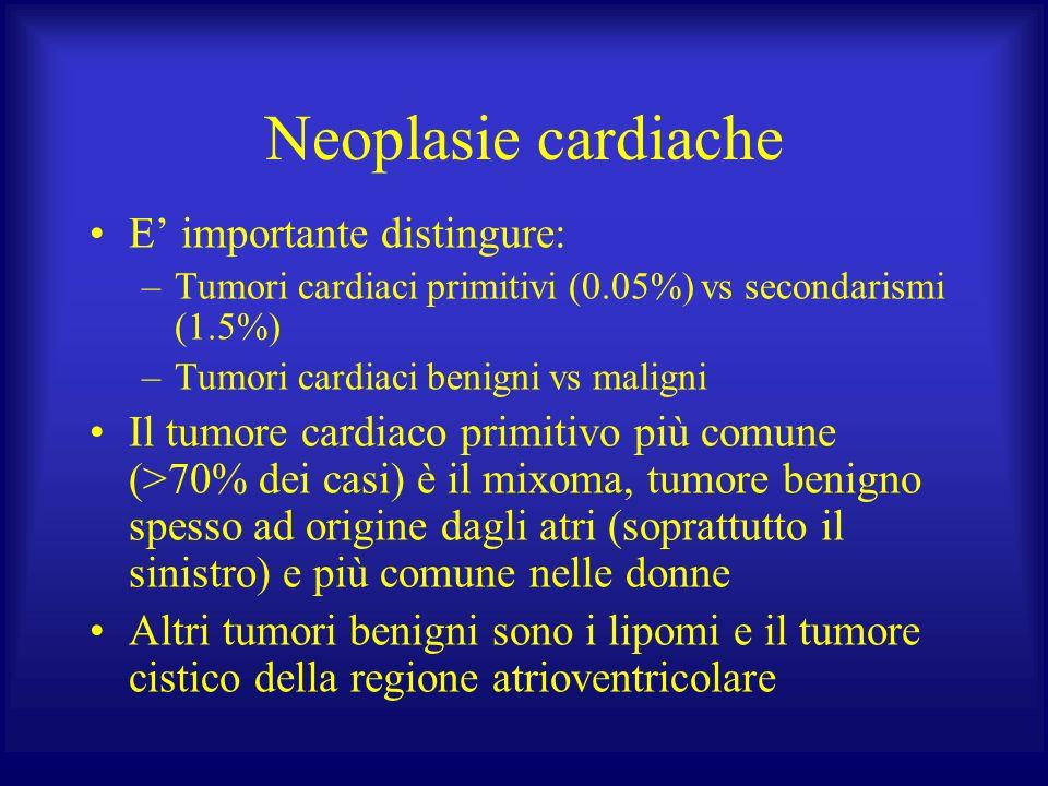 Neoplasie cardiache E' importante distingure: