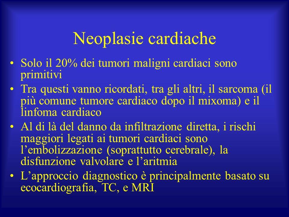 Neoplasie cardiache Solo il 20% dei tumori maligni cardiaci sono primitivi.