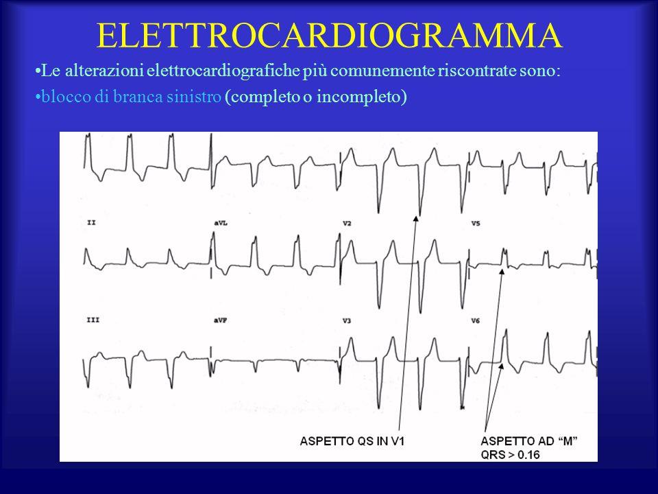 ELETTROCARDIOGRAMMA Le alterazioni elettrocardiografiche più comunemente riscontrate sono: blocco di branca sinistro (completo o incompleto)