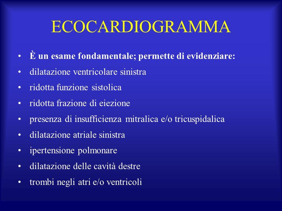 ECOCARDIOGRAMMA È un esame fondamentale; permette di evidenziare: