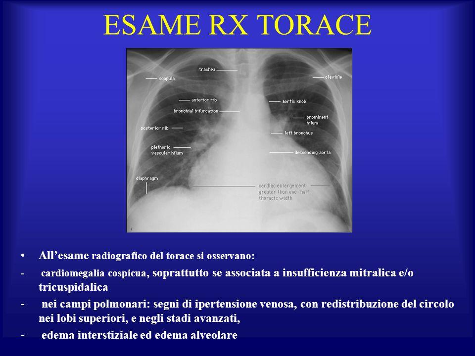 ESAME RX TORACE All'esame radiografico del torace si osservano: