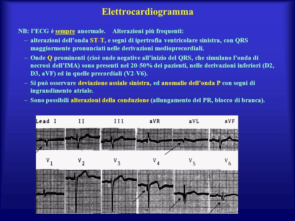 Elettrocardiogramma NB: l'ECG è sempre anormale. Alterazioni più frequenti: