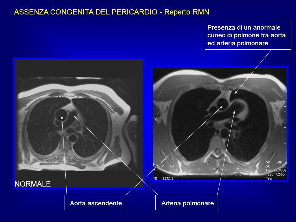 ASSENZA CONGENITA DEL PERICARDIO - Reperto RMN