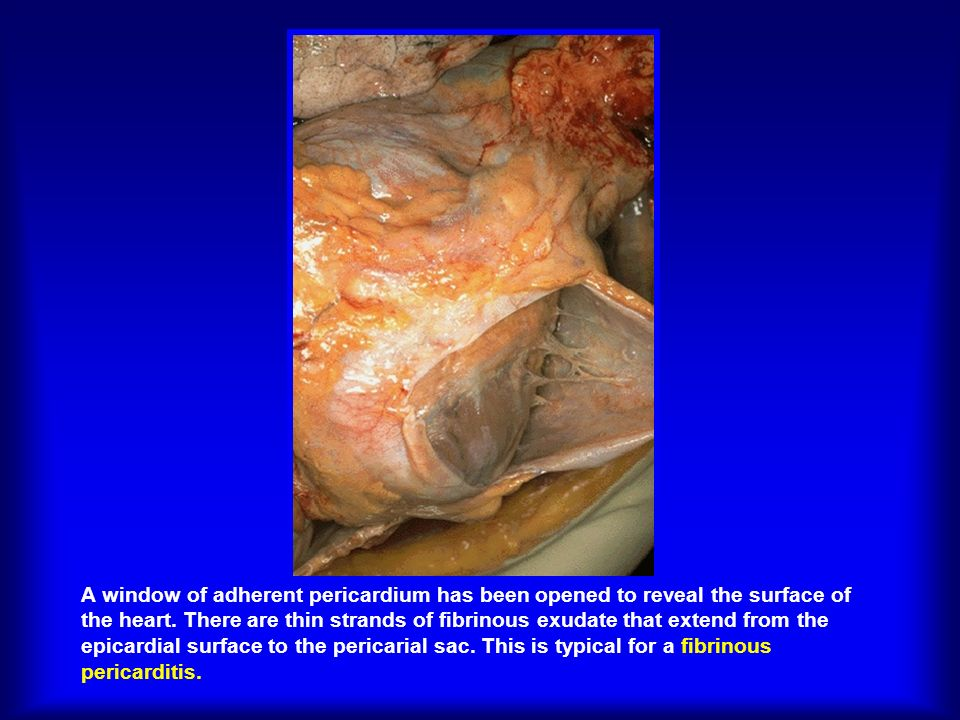 A window of adherent pericardium has been opened to reveal the surface of the heart.