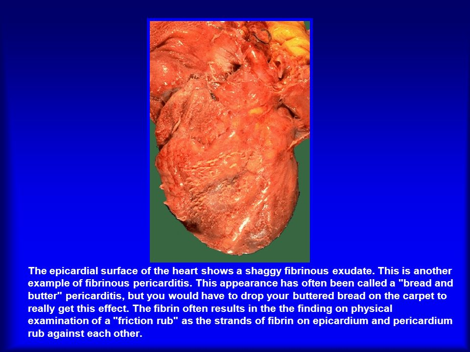 The epicardial surface of the heart shows a shaggy fibrinous exudate