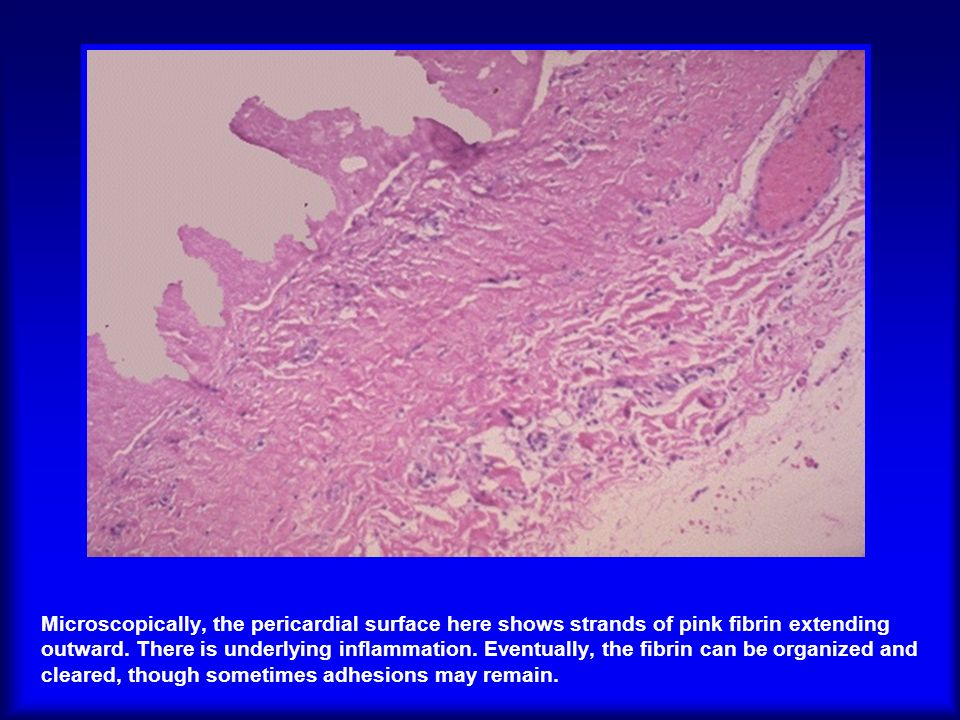 Microscopically, the pericardial surface here shows strands of pink fibrin extending outward.