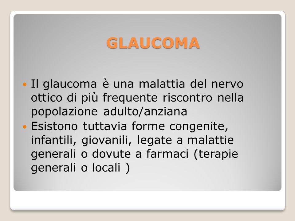 GLAUCOMA Il glaucoma è una malattia del nervo ottico di più frequente riscontro nella popolazione adulto/anziana.