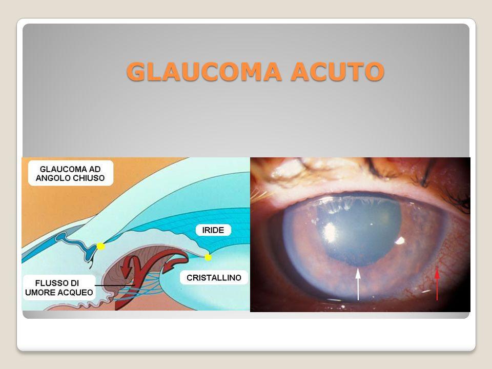GLAUCOMA ACUTO