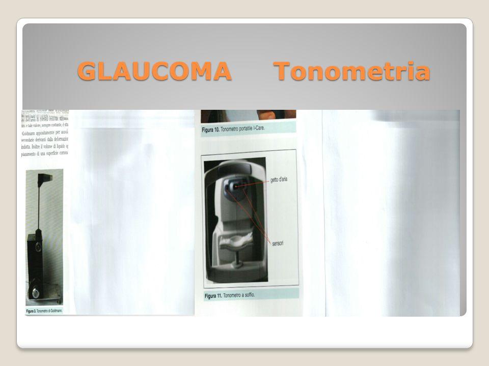 GLAUCOMA Tonometria