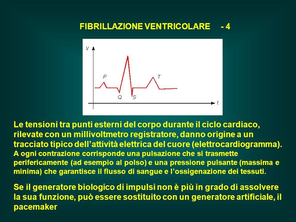 FIBRILLAZIONE VENTRICOLARE - 4