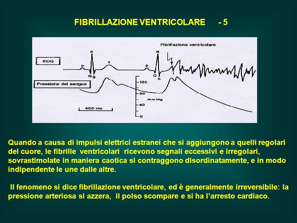 FIBRILLAZIONE VENTRICOLARE - 5