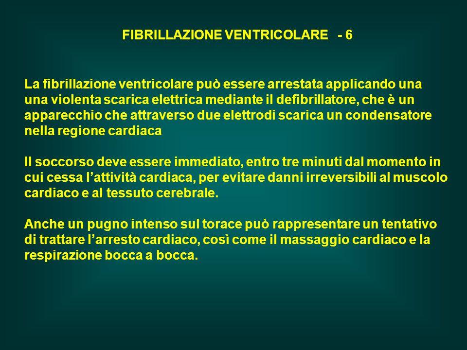 FIBRILLAZIONE VENTRICOLARE - 6