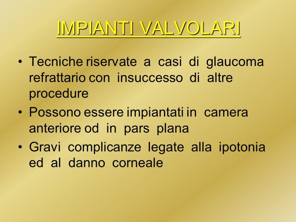IMPIANTI VALVOLARI Tecniche riservate a casi di glaucoma refrattario con insuccesso di altre procedure.