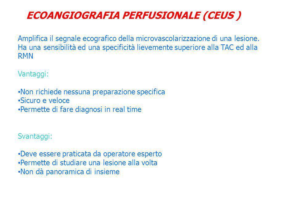 ECOANGIOGRAFIA PERFUSIONALE (CEUS )