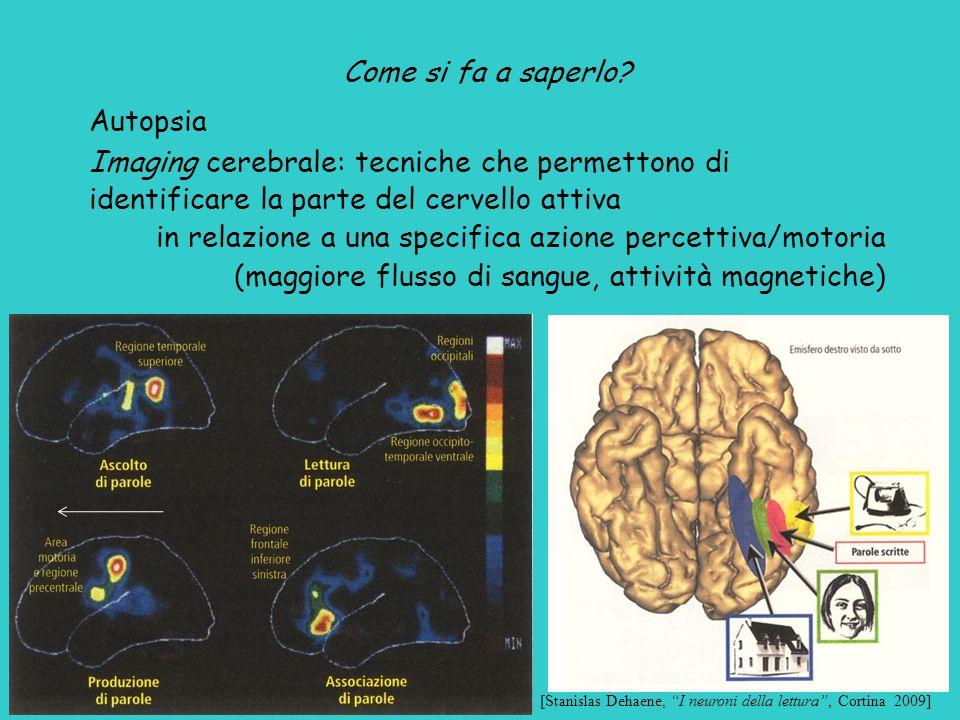 Imaging cerebrale: tecniche che permettono di