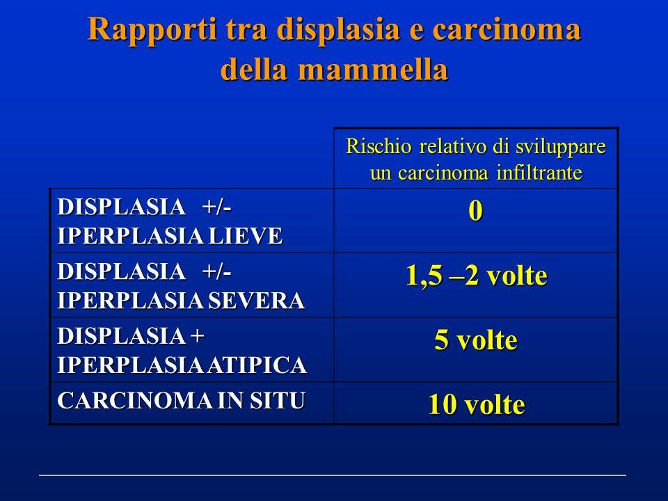 Rapporti tra displasia e carcinoma della mammella