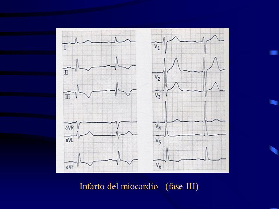 Infarto del miocardio (fase III)
