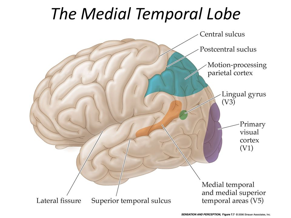 The Medial Temporal Lobe