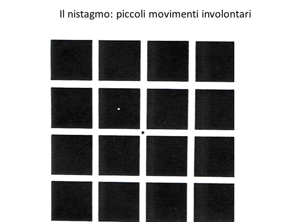 Il nistagmo: piccoli movimenti involontari