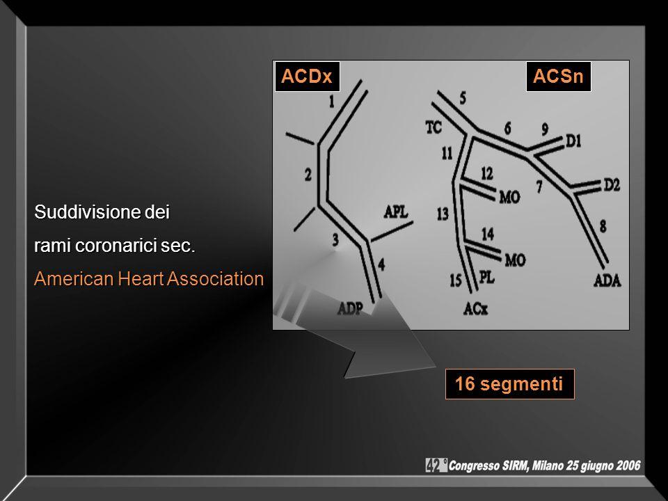ACDx ACSn Suddivisione dei rami coronarici sec. American Heart Association 16 segmenti