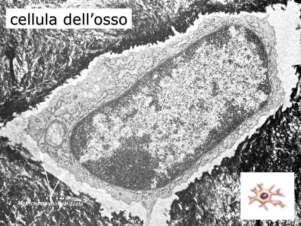 cellula dell'osso