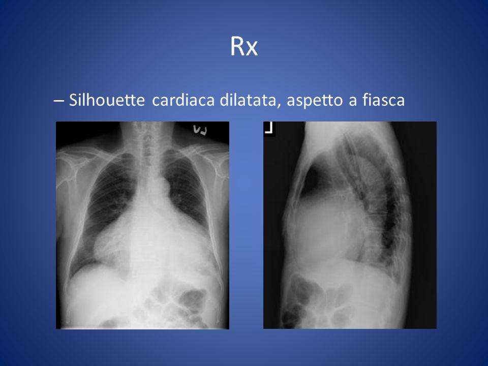 Rx Silhouette cardiaca dilatata, aspetto a fiasca
