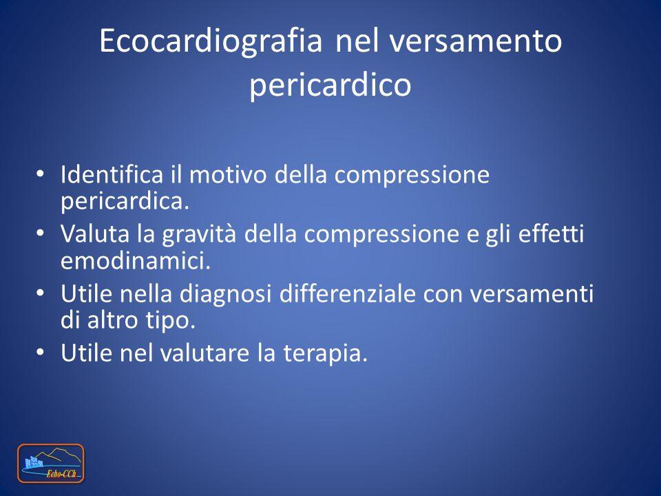 Ecocardiografia nel versamento pericardico
