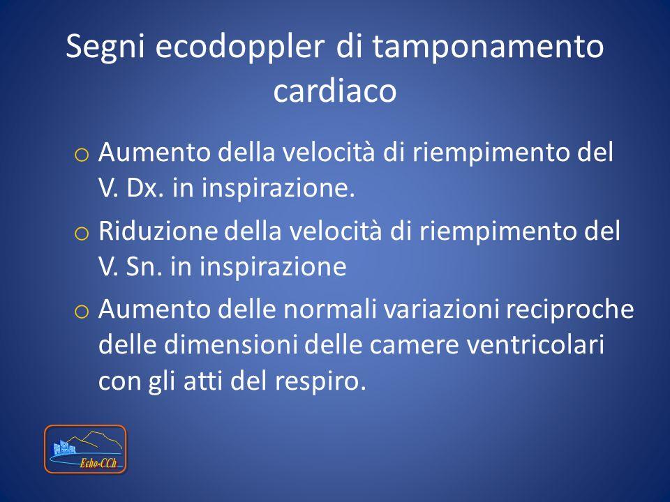 Segni ecodoppler di tamponamento cardiaco