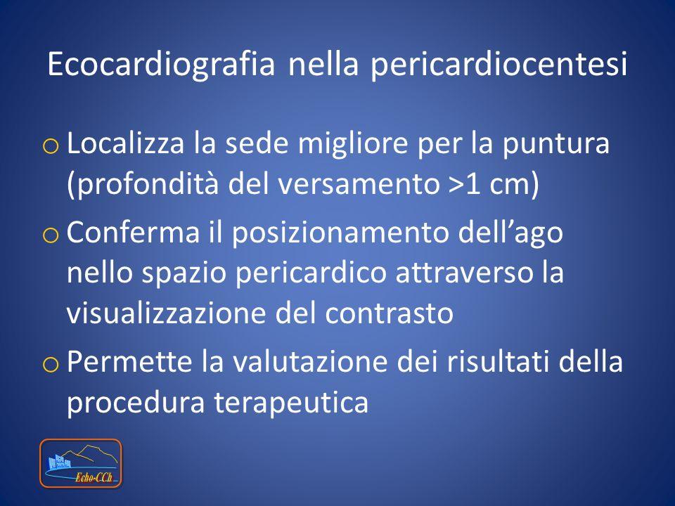Ecocardiografia nella pericardiocentesi