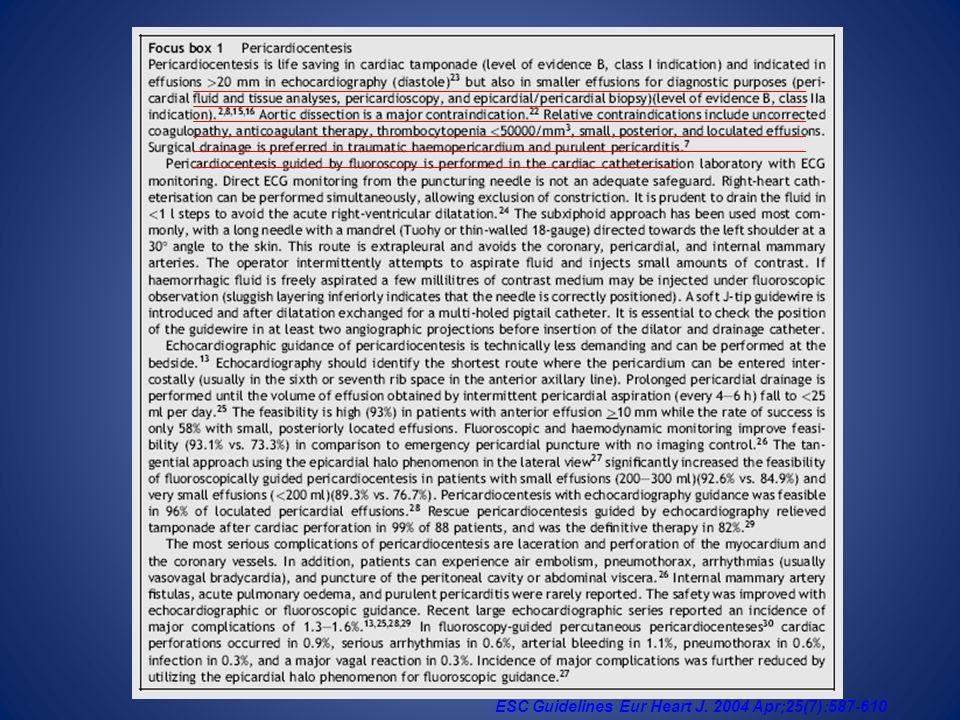 ESC Guidelines Eur Heart J. 2004 Apr;25(7):587-610