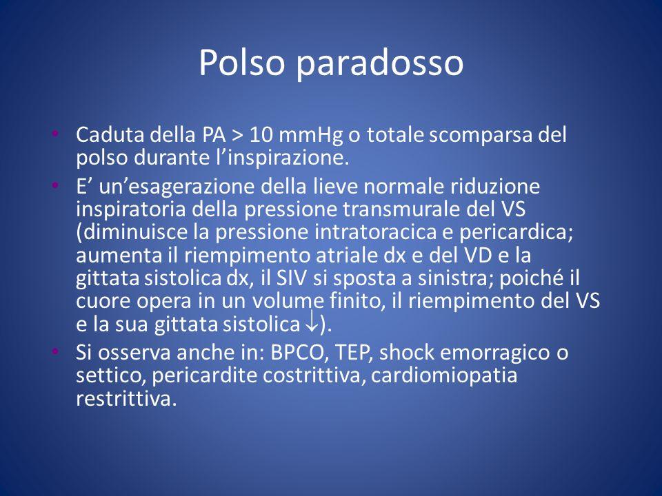 Polso paradosso Caduta della PA > 10 mmHg o totale scomparsa del polso durante l'inspirazione.