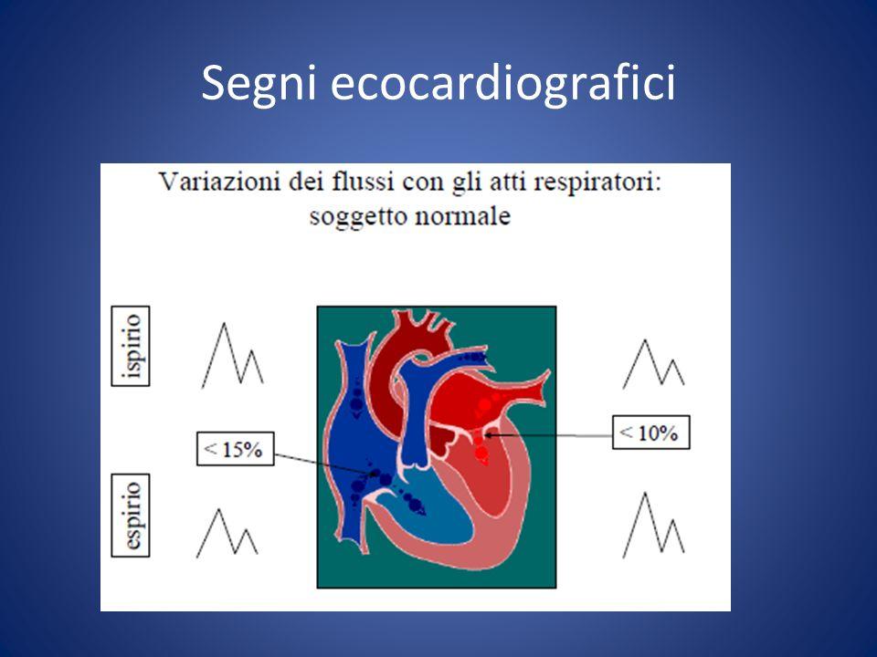 Segni ecocardiografici