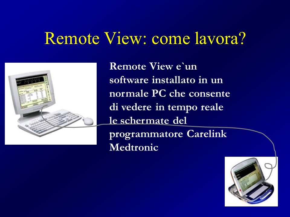 Remote View: come lavora