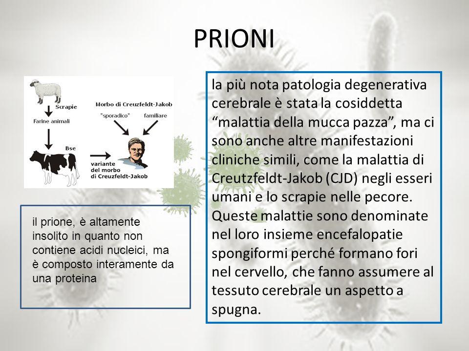 PRIONI