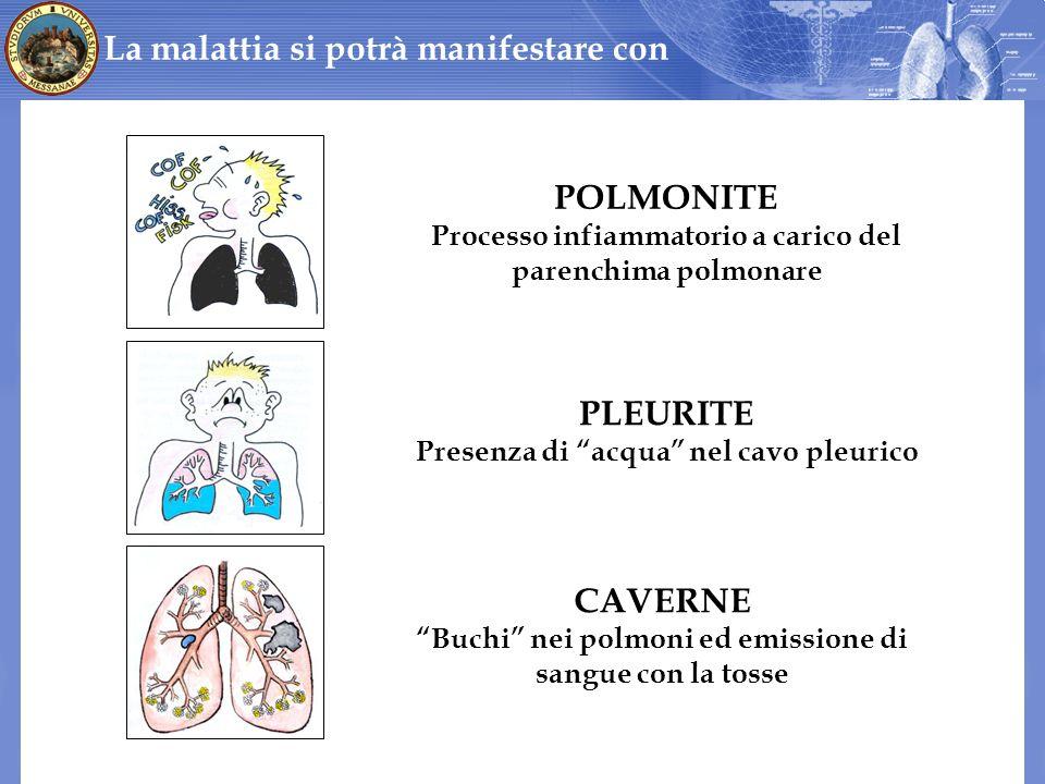 La malattia si potrà manifestare con POLMONITE PLEURITE CAVERNE