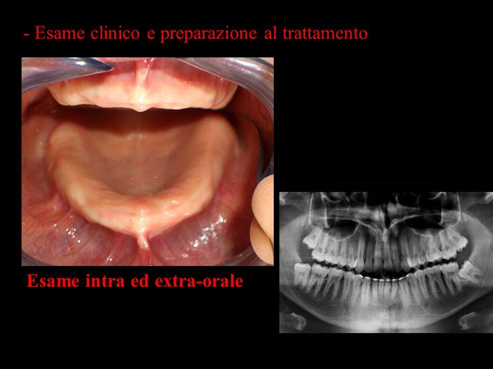 - Esame clinico e preparazione al trattamento