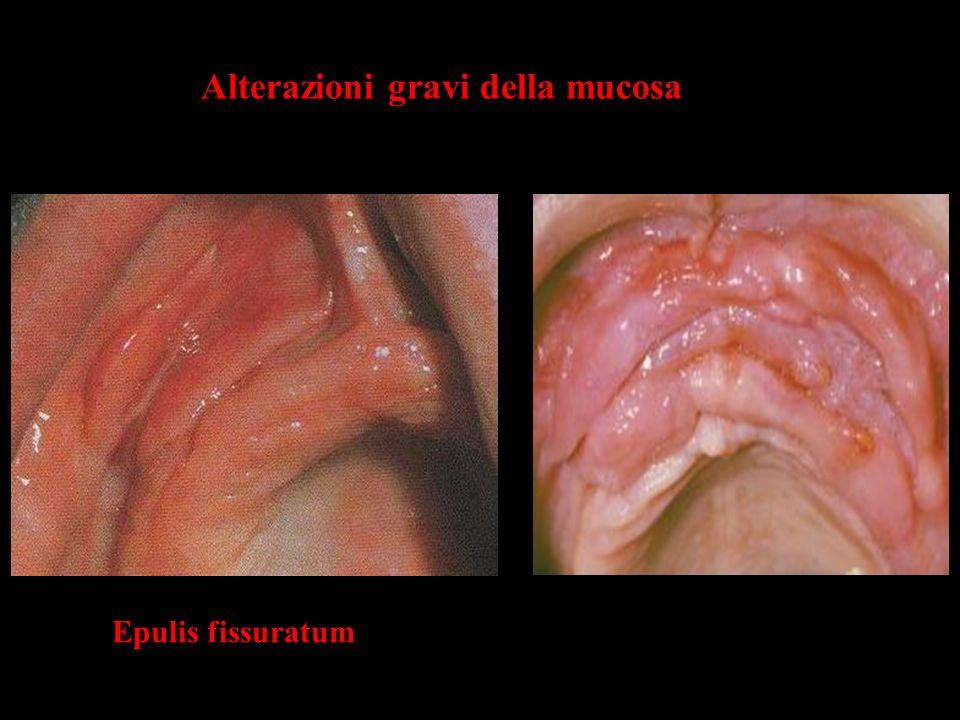 Alterazioni gravi della mucosa