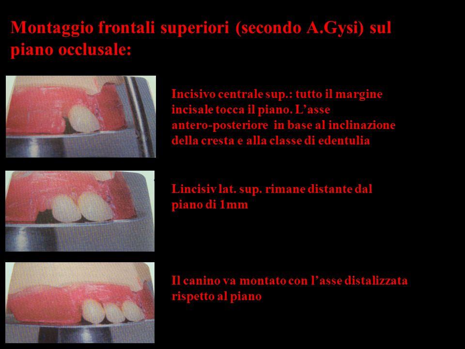 Montaggio frontali superiori (secondo A.Gysi) sul piano occlusale:
