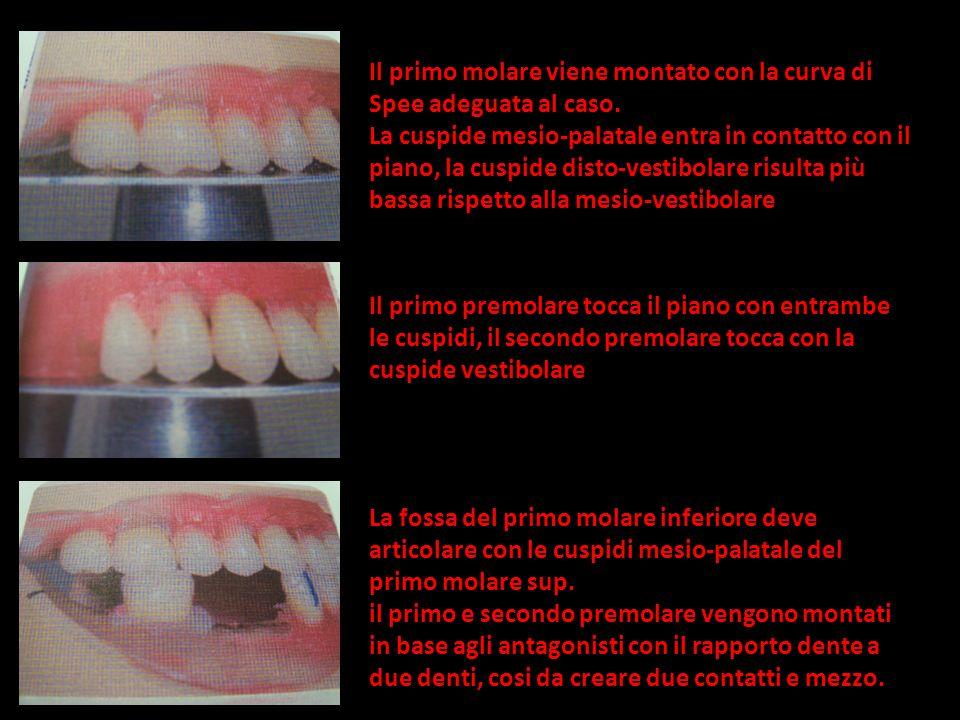 Il primo molare viene montato con la curva di Spee adeguata al caso.
