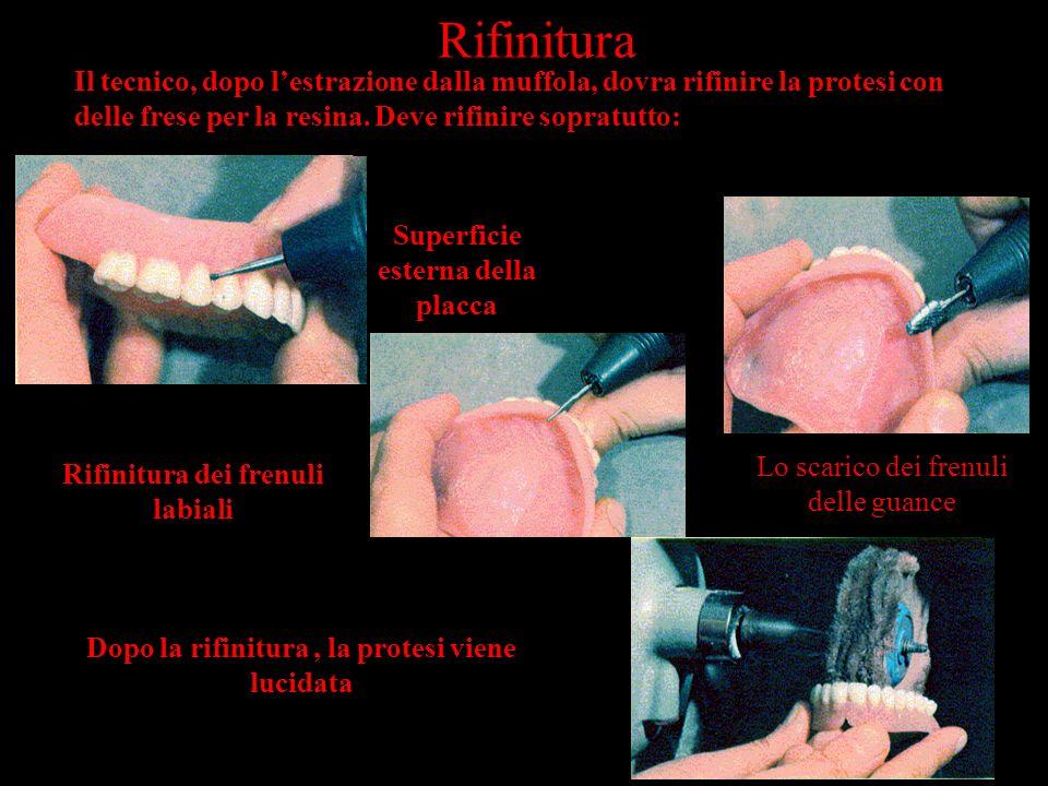 Rifinitura Il tecnico, dopo l'estrazione dalla muffola, dovra rifinire la protesi con delle frese per la resina. Deve rifinire sopratutto: