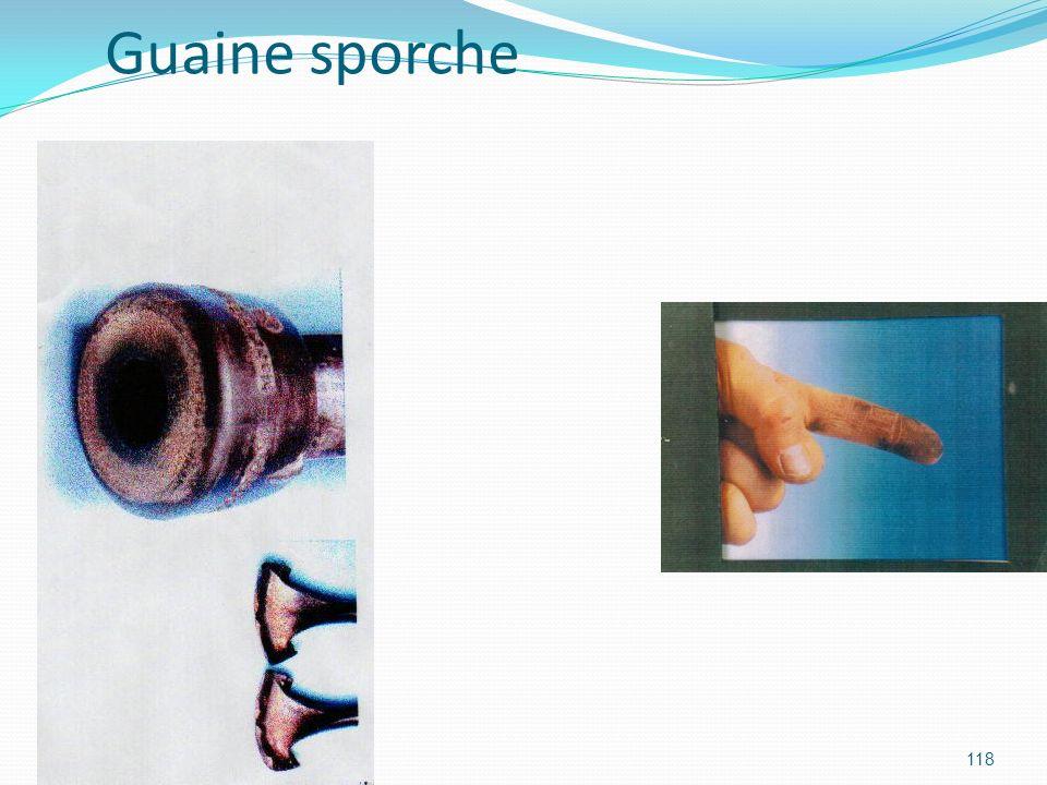 Guaine sporche
