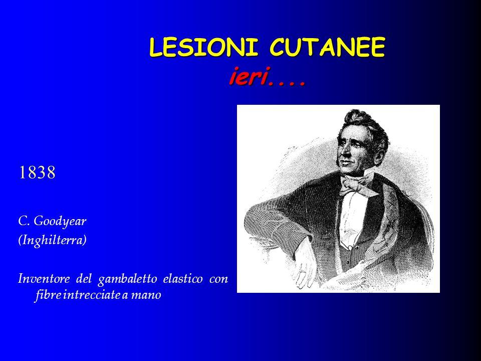 LESIONI CUTANEE ieri.... 1838 C. Goodyear (Inghilterra)