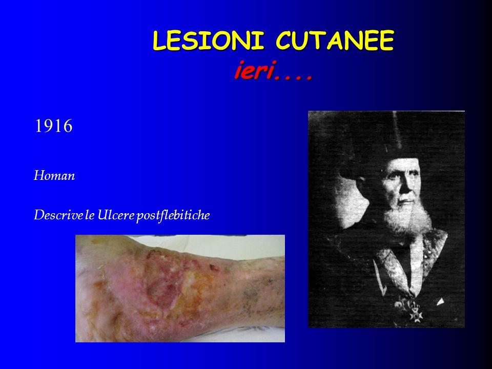 LESIONI CUTANEE ieri.... 1916 Homan Descrive le Ulcere postflebitiche