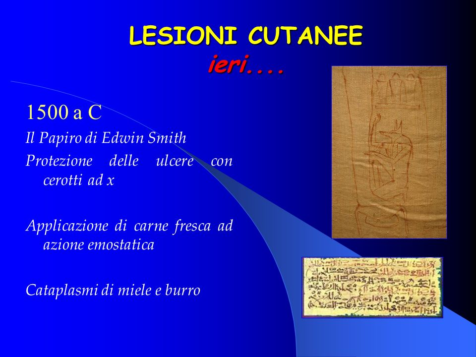 LESIONI CUTANEE ieri.... 1500 a C Il Papiro di Edwin Smith