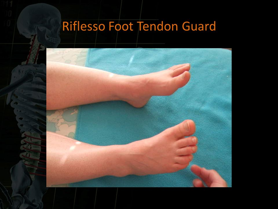 Riflesso Foot Tendon Guard