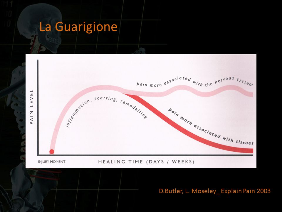 La Guarigione D.Butler, L. Moseley_ Explain Pain 2003