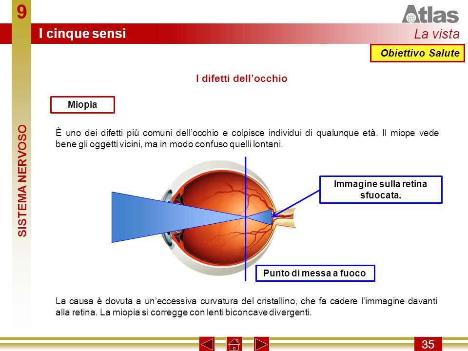 Immagine sulla retina sfuocata.